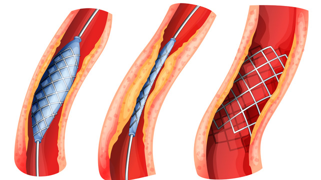 angioplasty doctor in ghaziabad